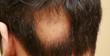 alopecia3