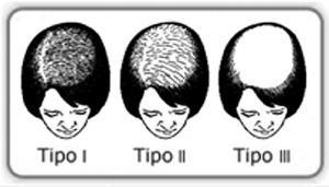 Alopecia femenina, patrón de Ludwig
