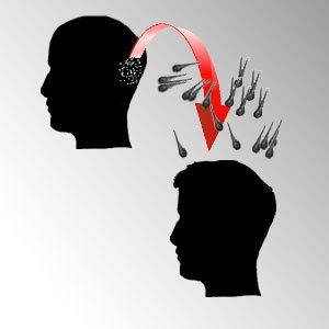 Técnica FUE de trasplante de pelo