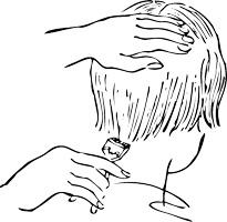 raparse y la alopecia
