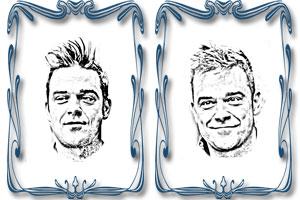 El implante de pelo de Robbie Williams