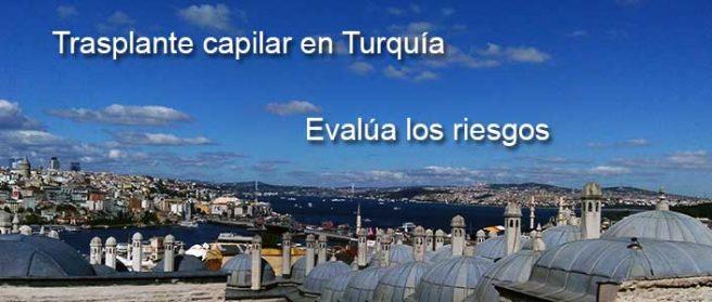 Trasplante capilar en Turquía