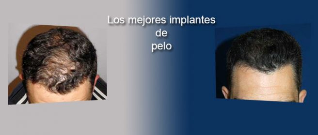 Los mejores implantes de pelo