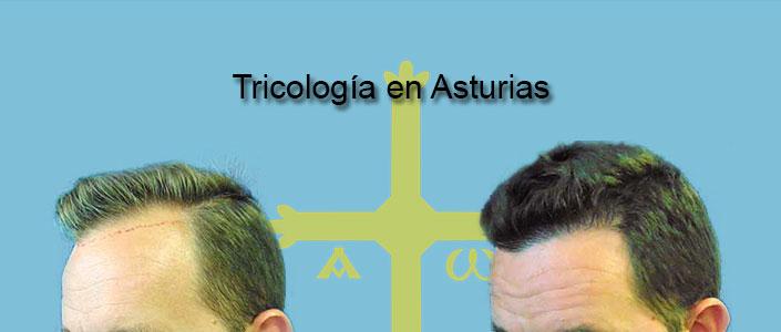 Tricología en Asturias