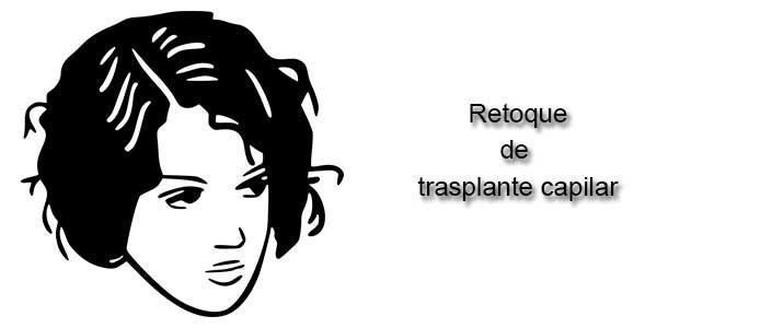 Retoque de trasplante capilar