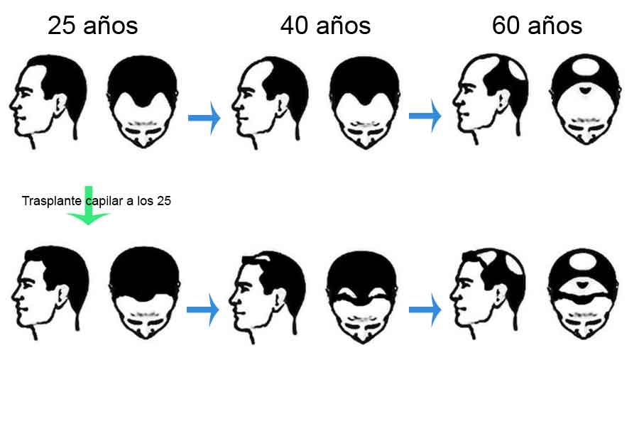 Edad para un trasplante capilar 2