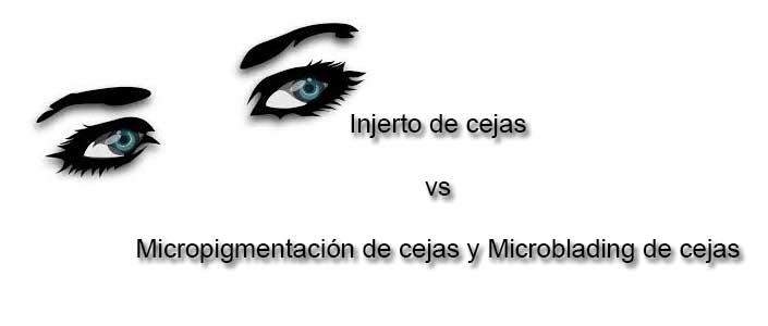 Injerto de cejas vs micropigmentación de cejas