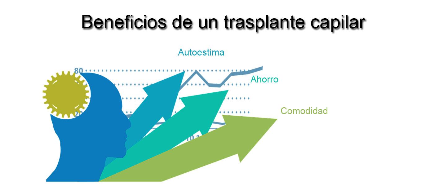 Beneficios de un trasplante capilar