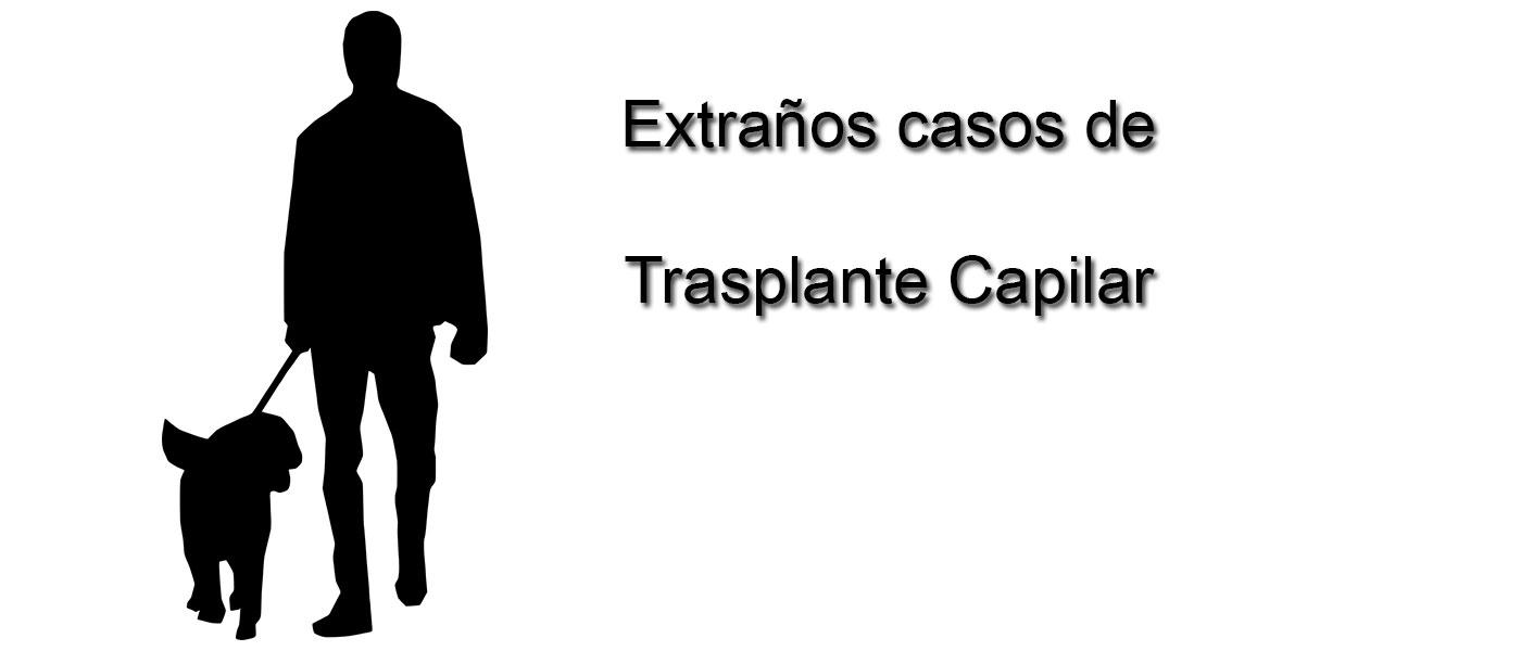 Extraños casos de trasplante capilar