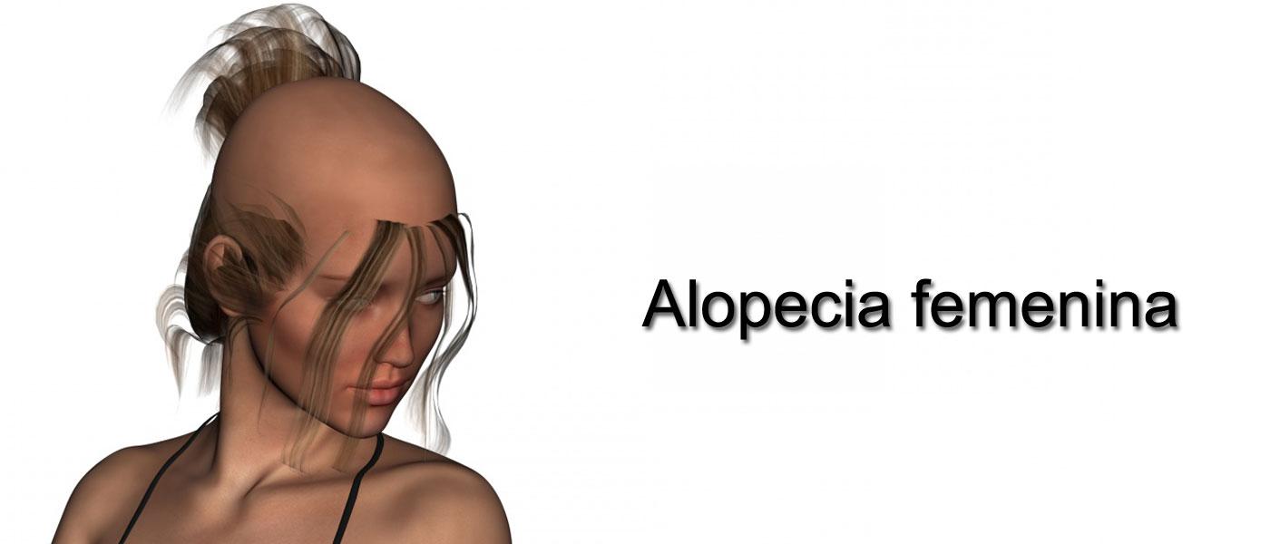 Alopecia en la mujer