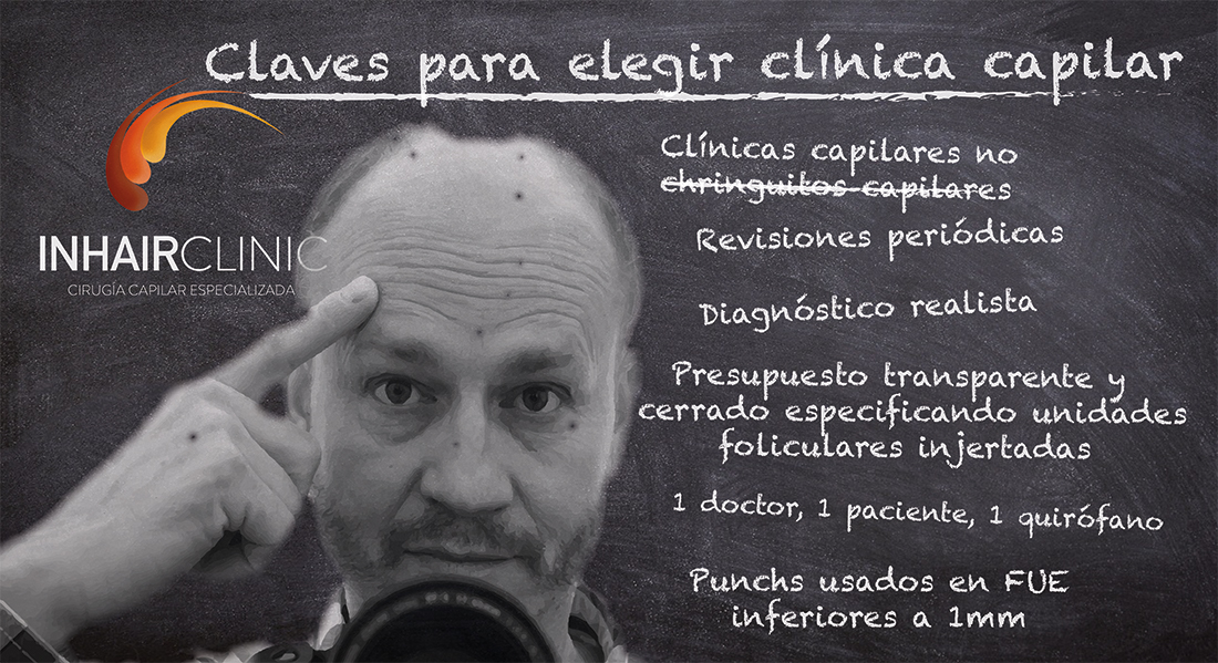 clinica capilar ¿Cuál elegir?