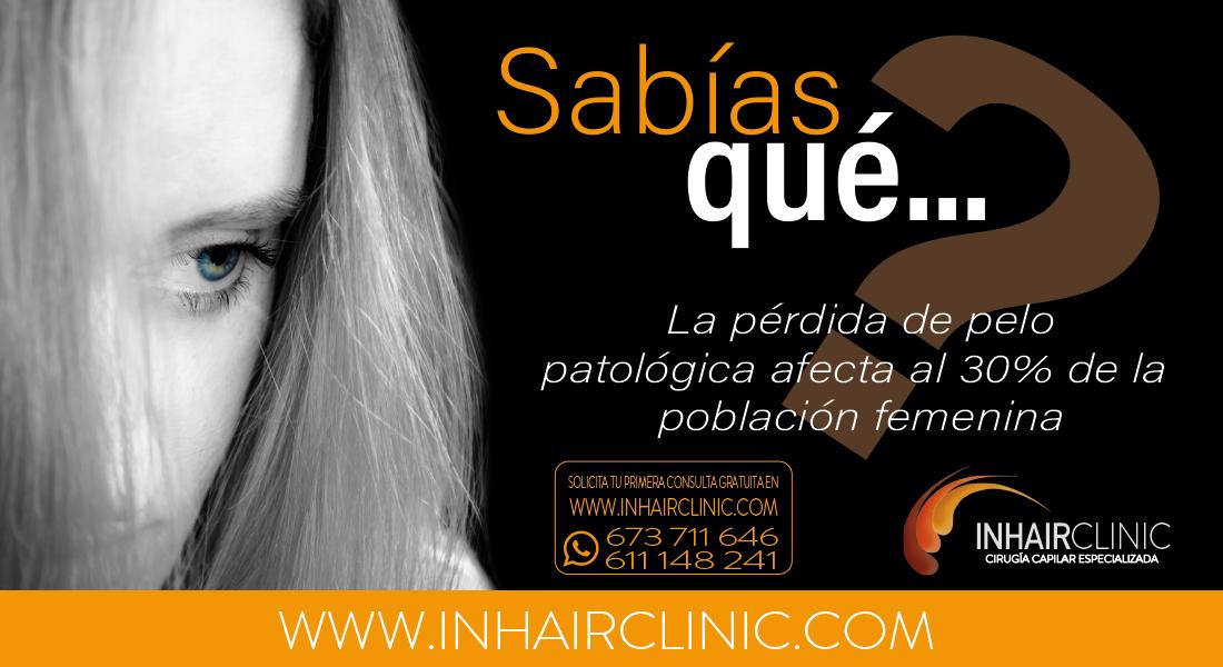 alopecia en la mujer injerto capilar madrid inharclinic